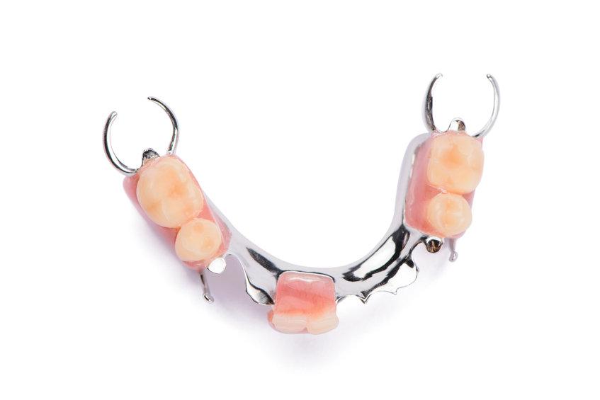 Partial metal denture