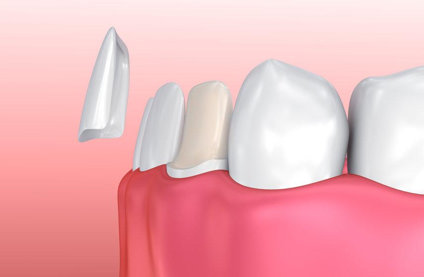 Dental Veneer 3D illustration
